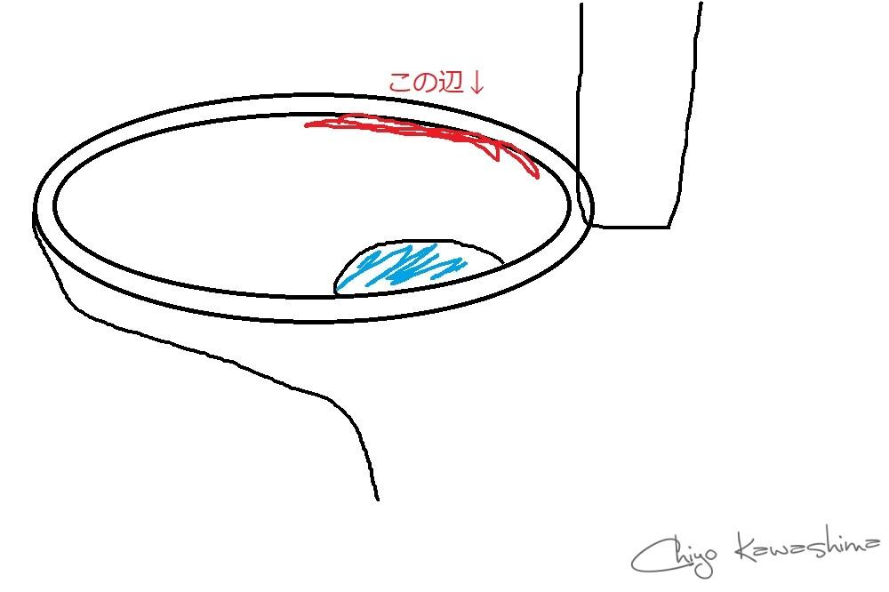 トイレの縁